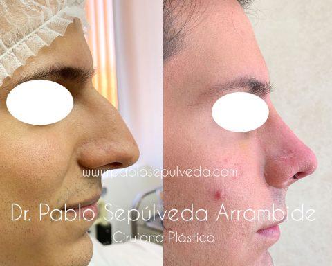 cirujano plastico de nariz en monterrey