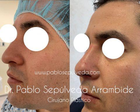 cirugia de nariz monterrey