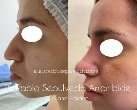 cirujano de nariz
